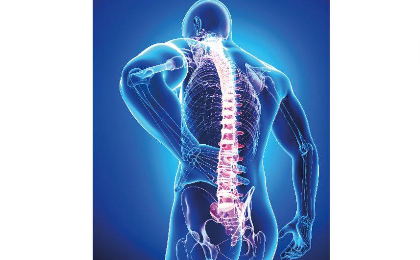 Rückenschmerzen verursachen im Kreis Lippe über 62.900 Ausfalltage